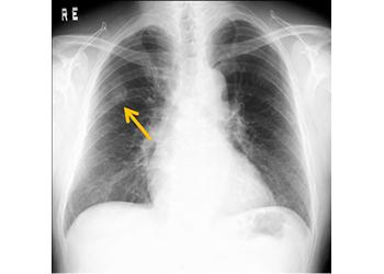 健診時、胸部に異常がみられた方へ|健康サポートについて ...